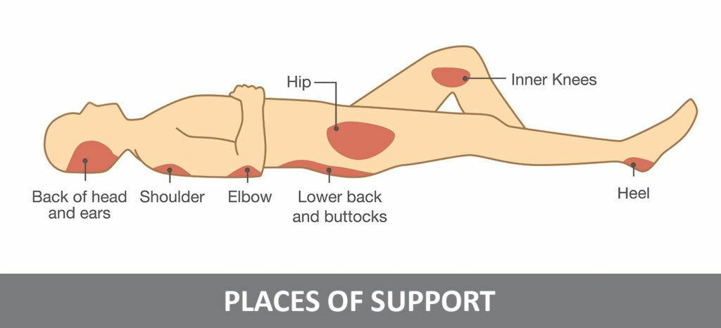 Body parts where decubitus can develop