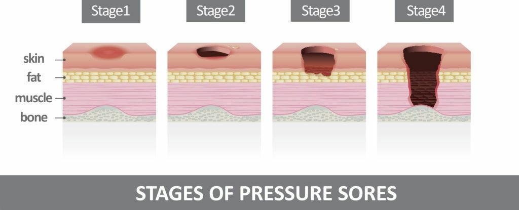 Four stages of decubitus